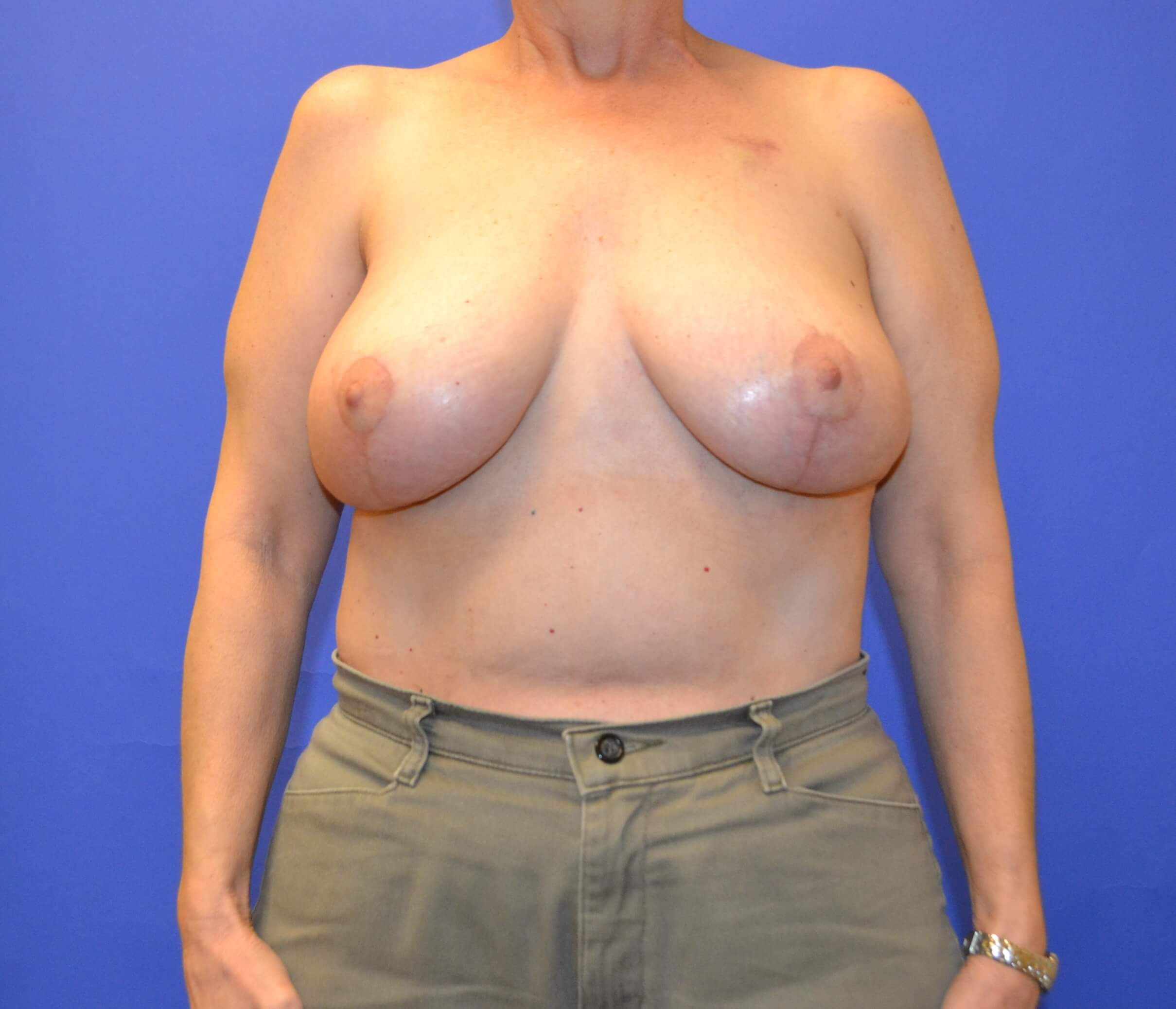 Breast Reconst After