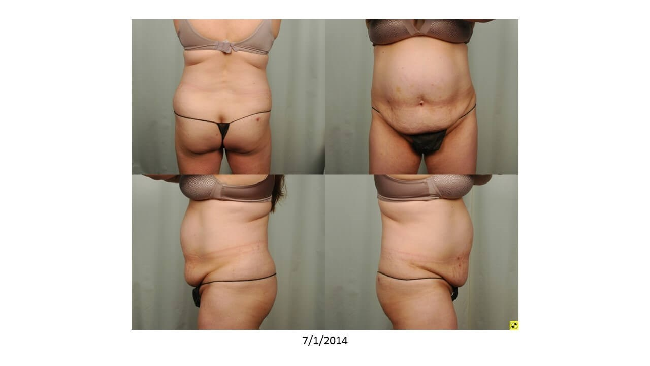 Tummy Tuck & Liposuction Before