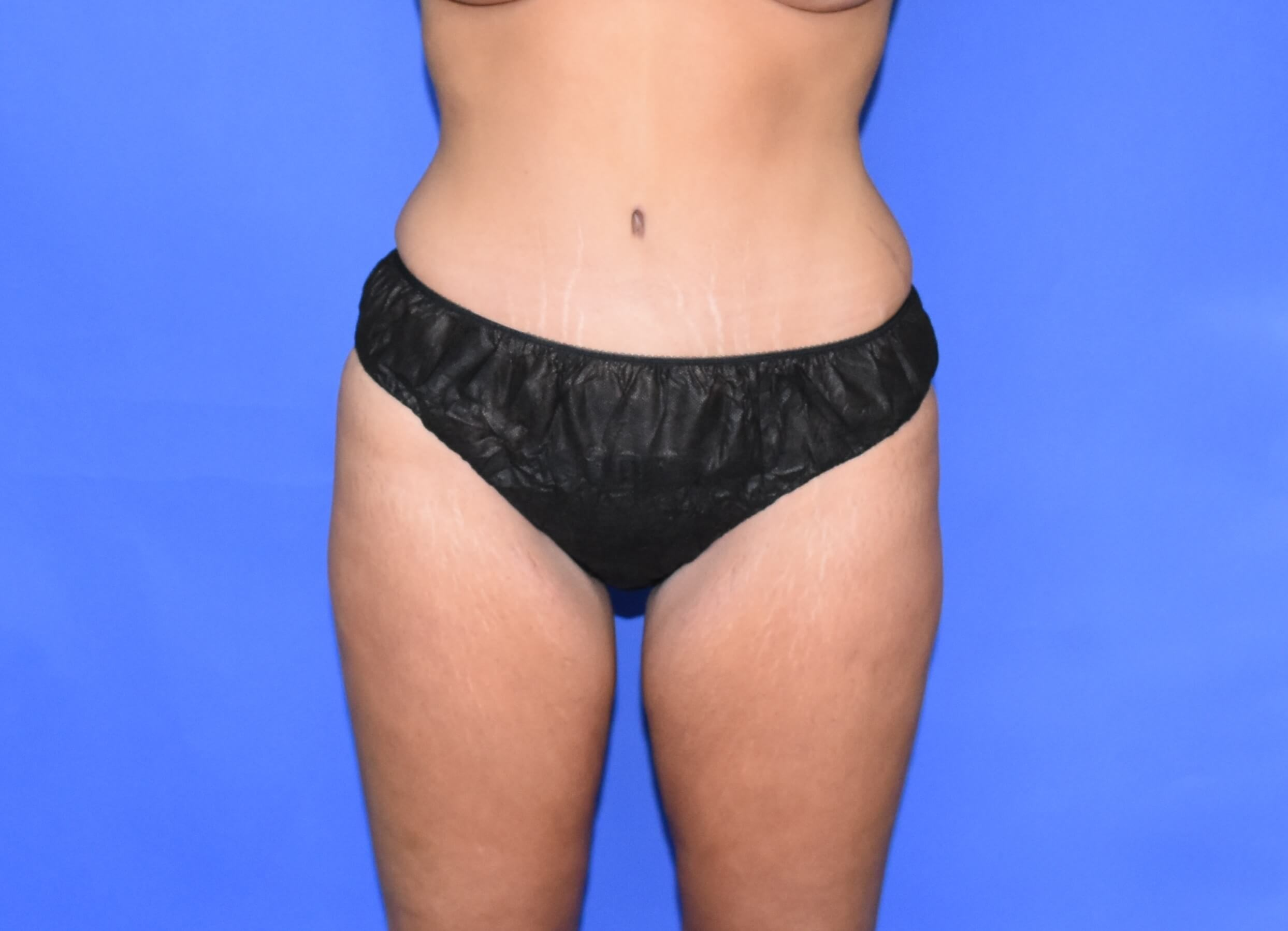 Tummy Tuck - Houston, TX After