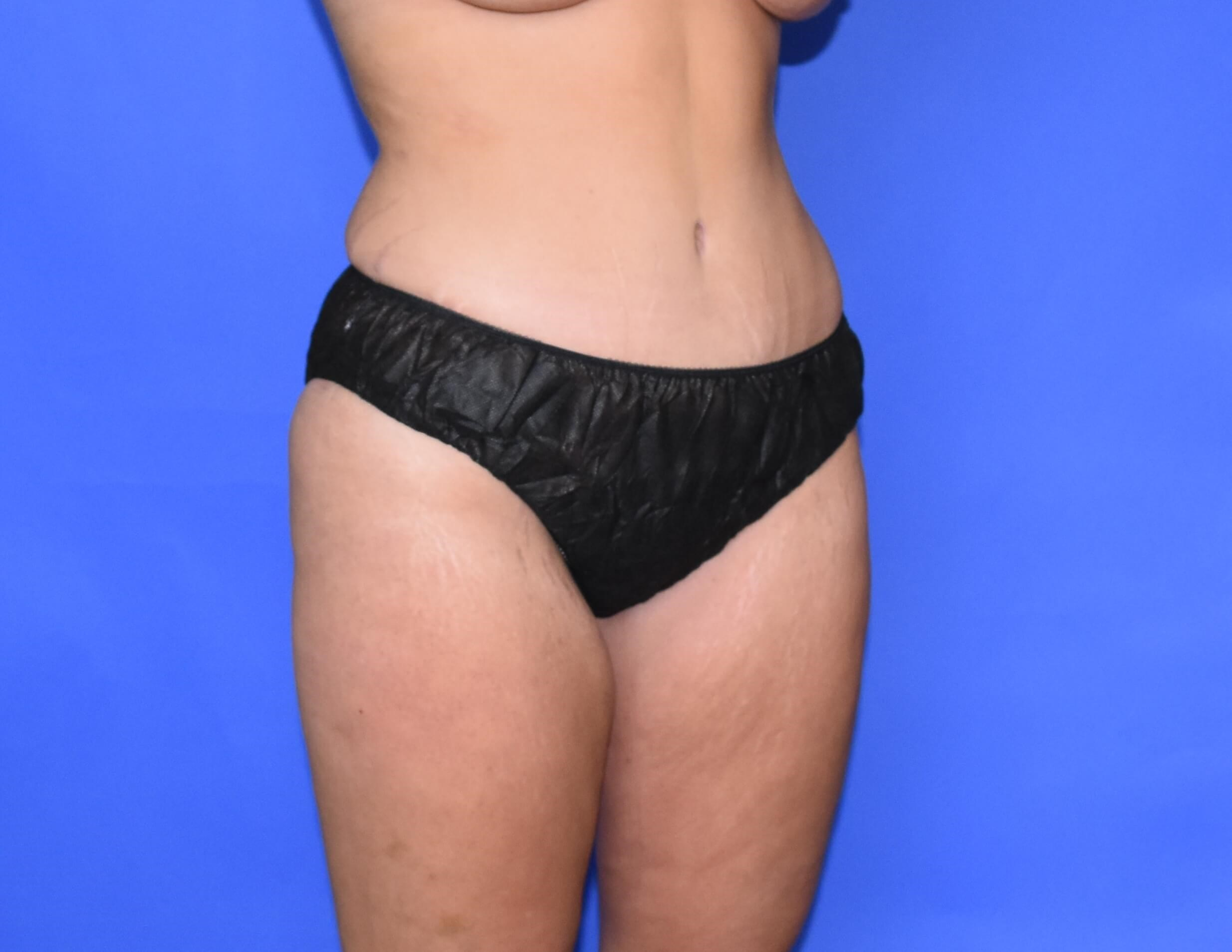 Abdominoplasty - Houston After