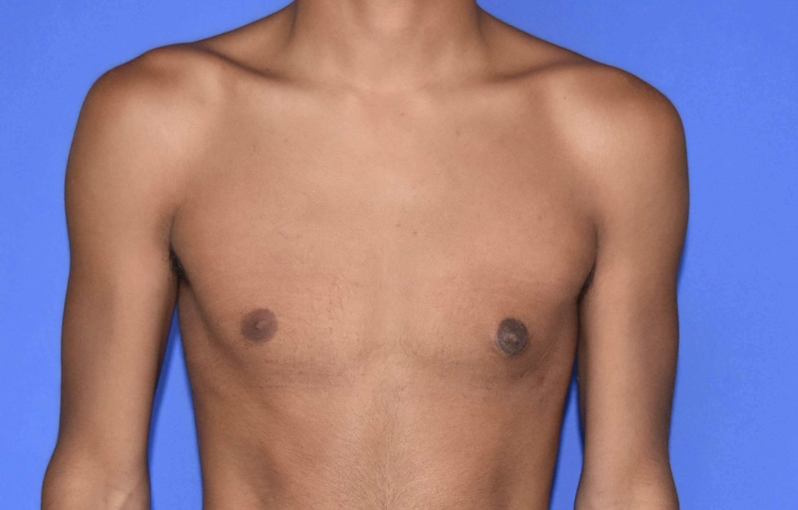 Male Breast Reduction - Texas After