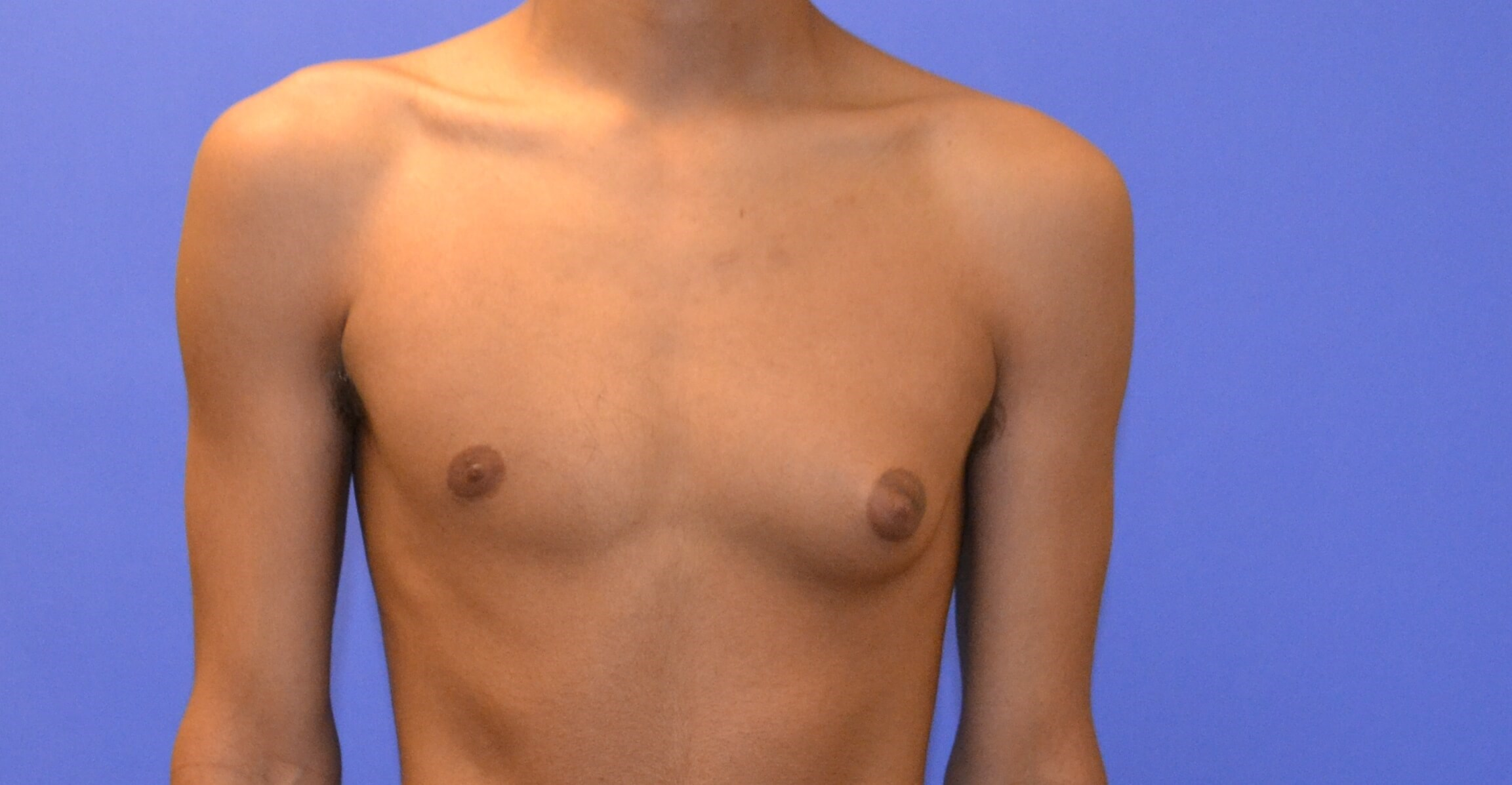 Male Breast Reduction - Texas Before