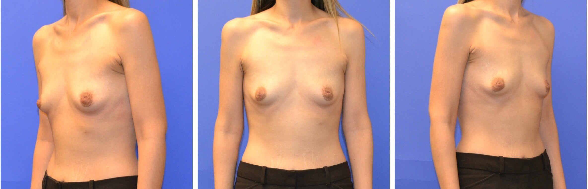 Breast Reconstruction - Left Before
