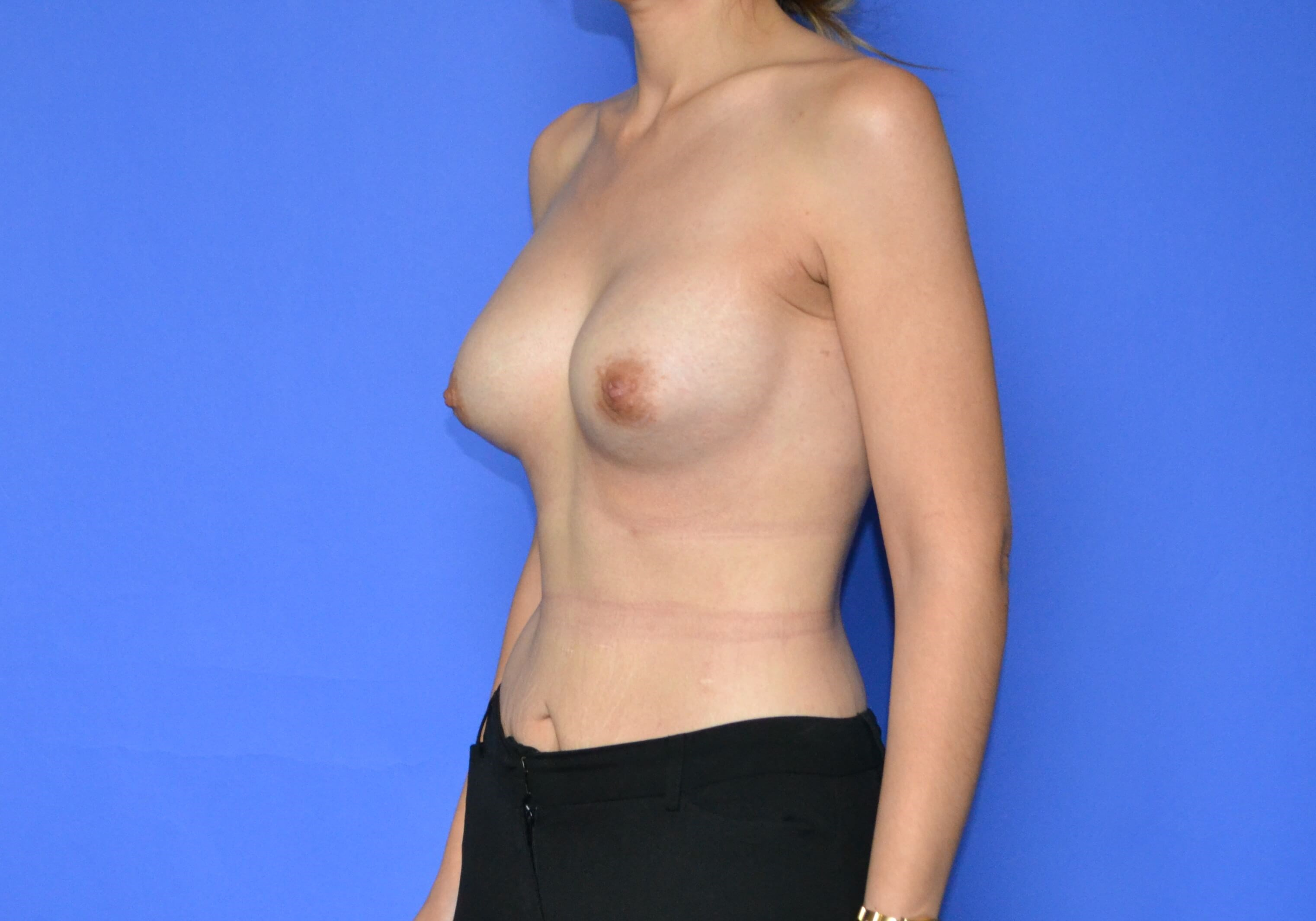 Breast Reconstruction - Left After