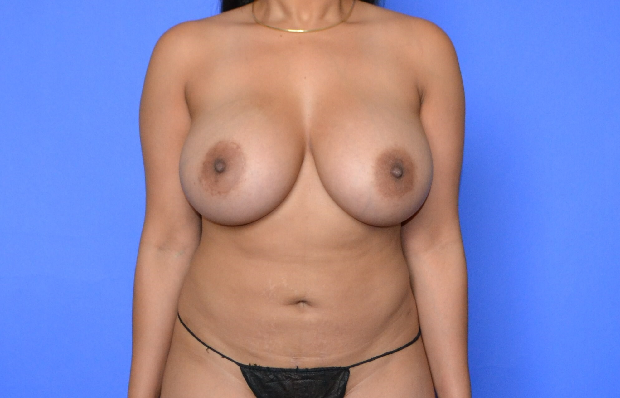 Breast Augmentation - Katy After