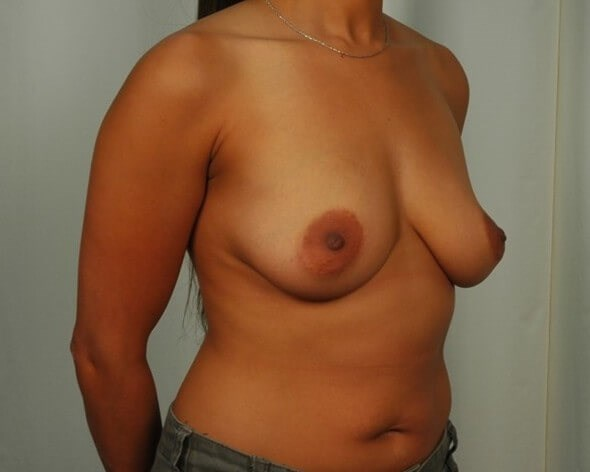 Breast Augmentation - Katy Before