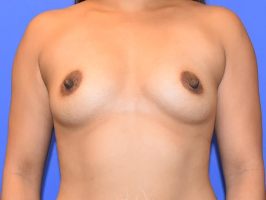 Breast Augmentation - Houston Before