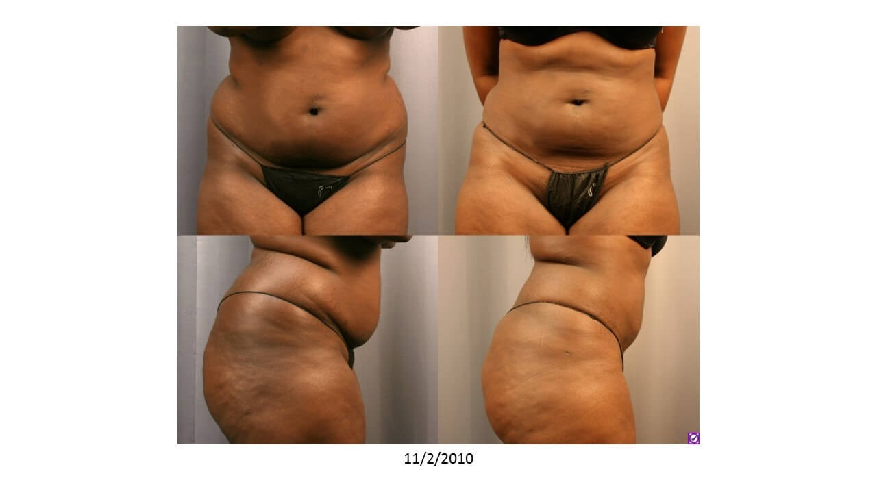 Liposuction to Fat Grafting Before