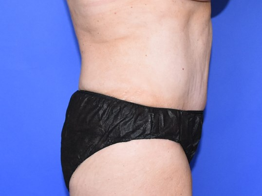 Tummy Tuck - Houston After