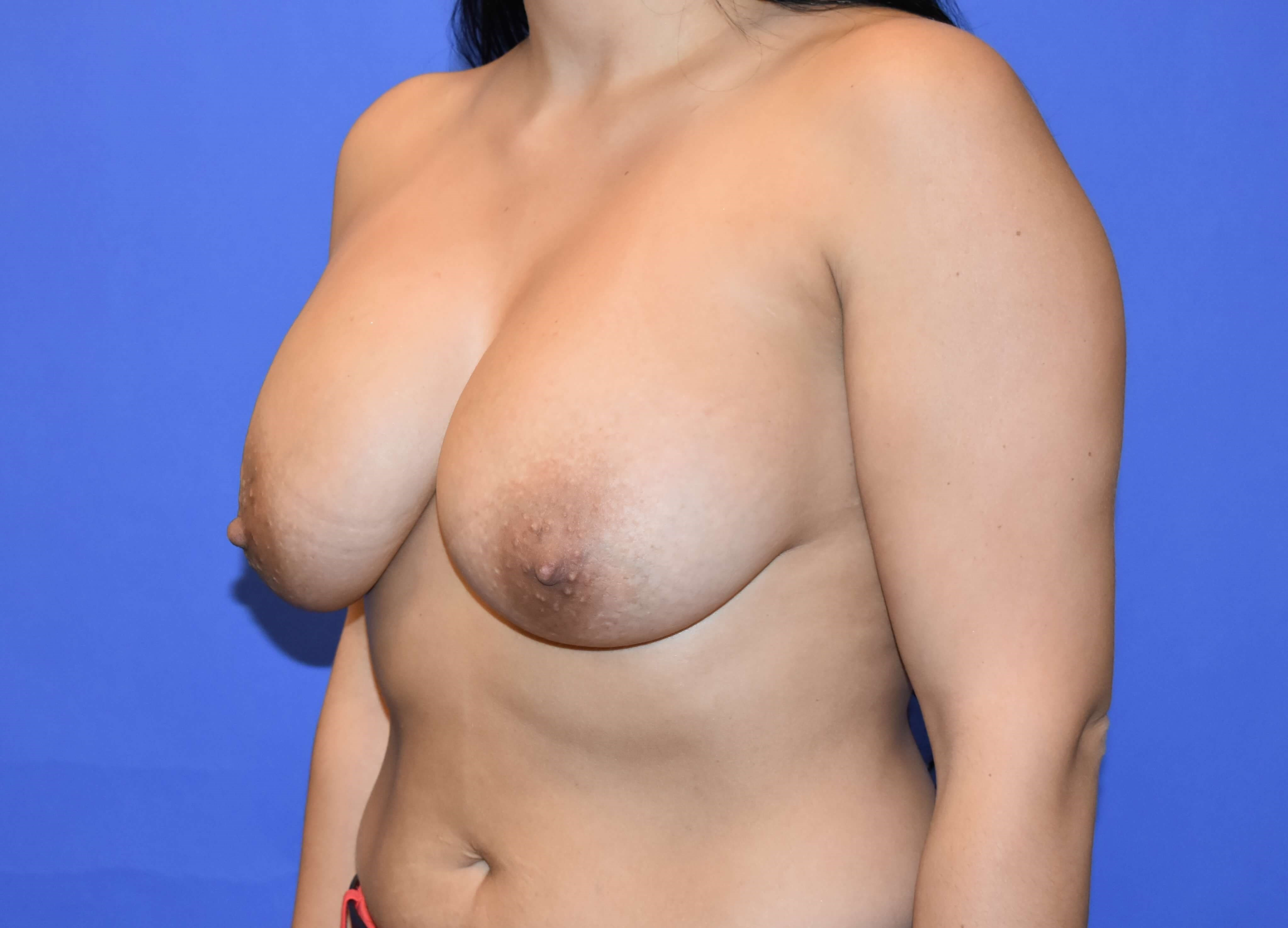 Breast Augmentation - Katy, TX After
