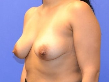 Breast Augmentation - Katy, TX Before