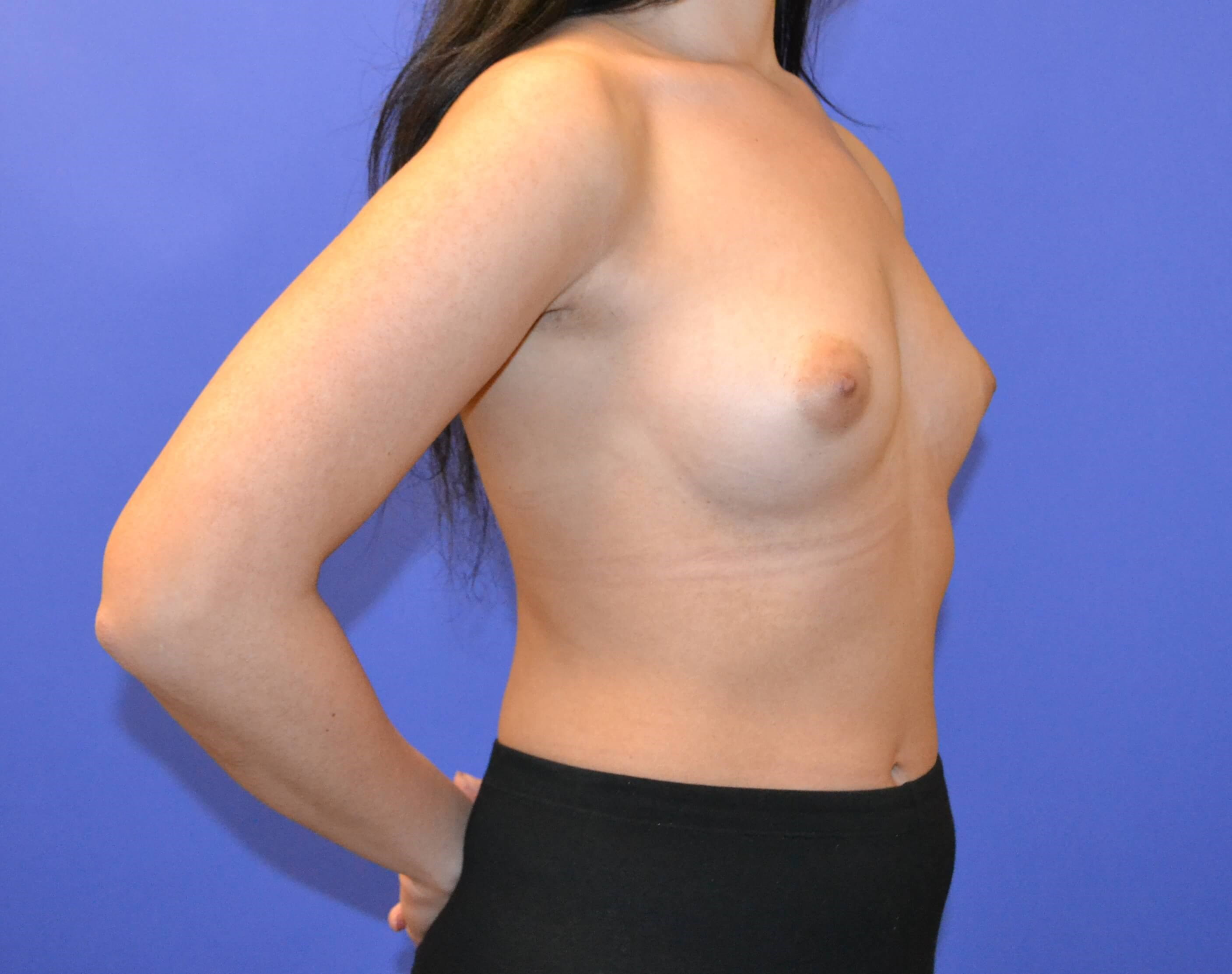 Breast Augmentation Houston Before
