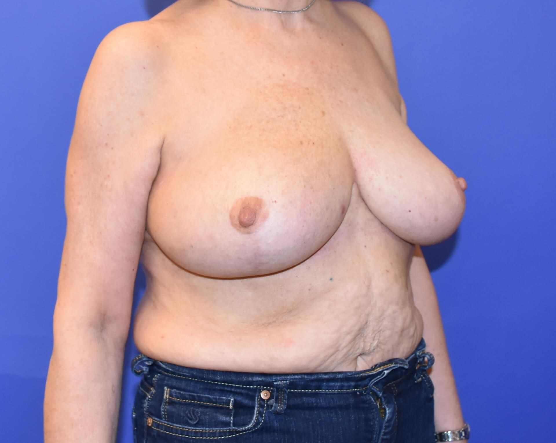 Breast Reconstruction Katy TX After