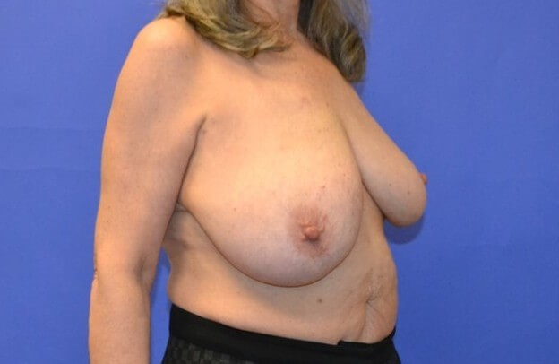 Breast Reconstruction Katy TX Before