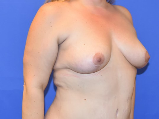 Breast Lift Houston TX After