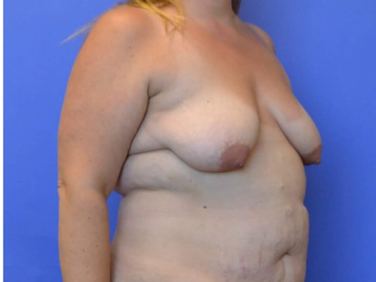 Breast Lift Houston TX Before