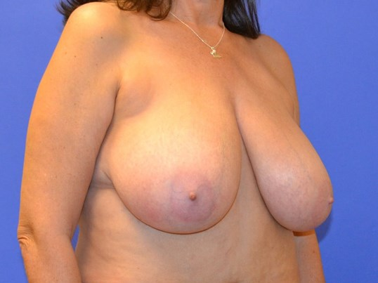 Houston Breast Reduction Before 34DDD