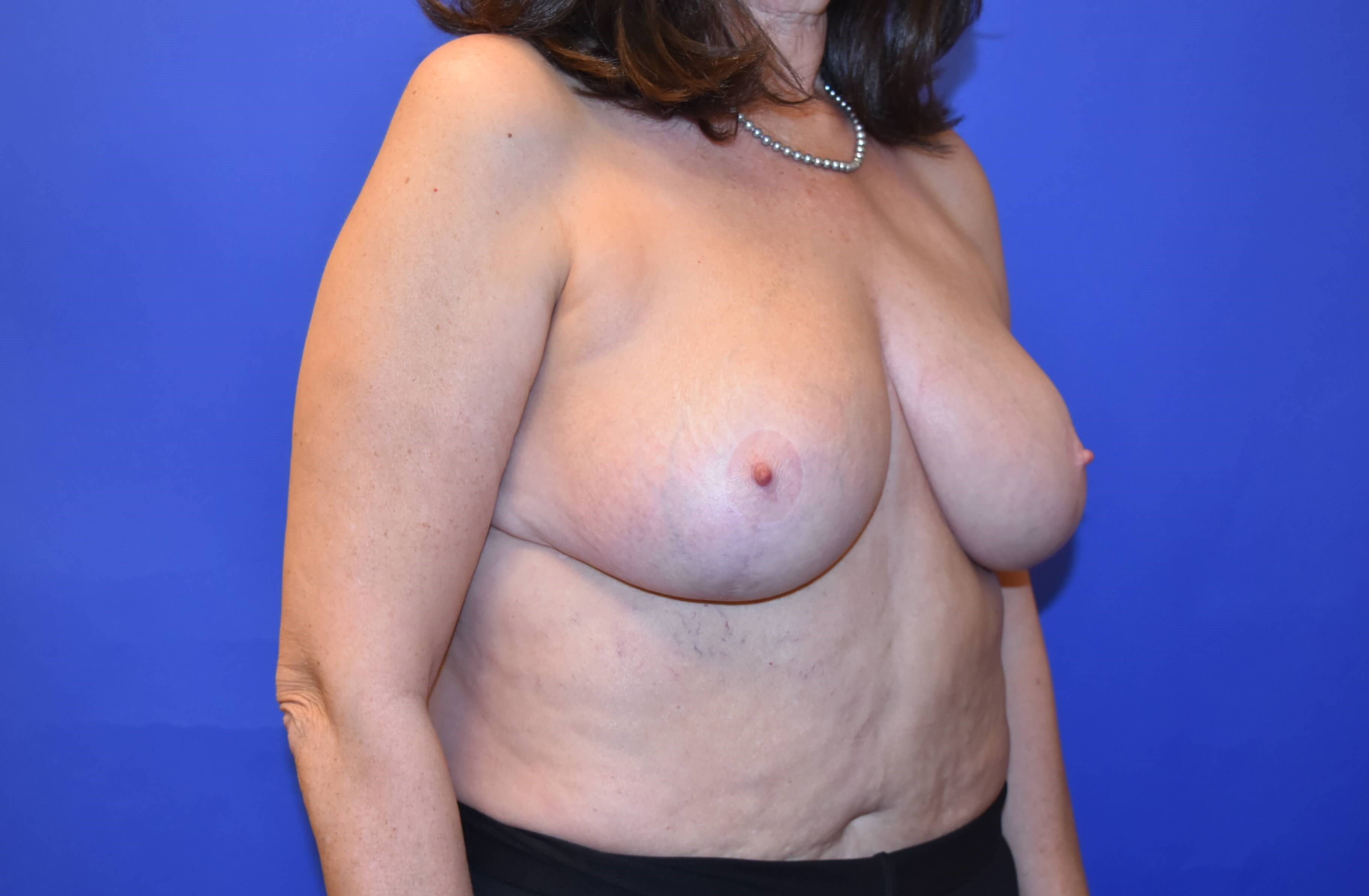 Houston Breast Reduction After