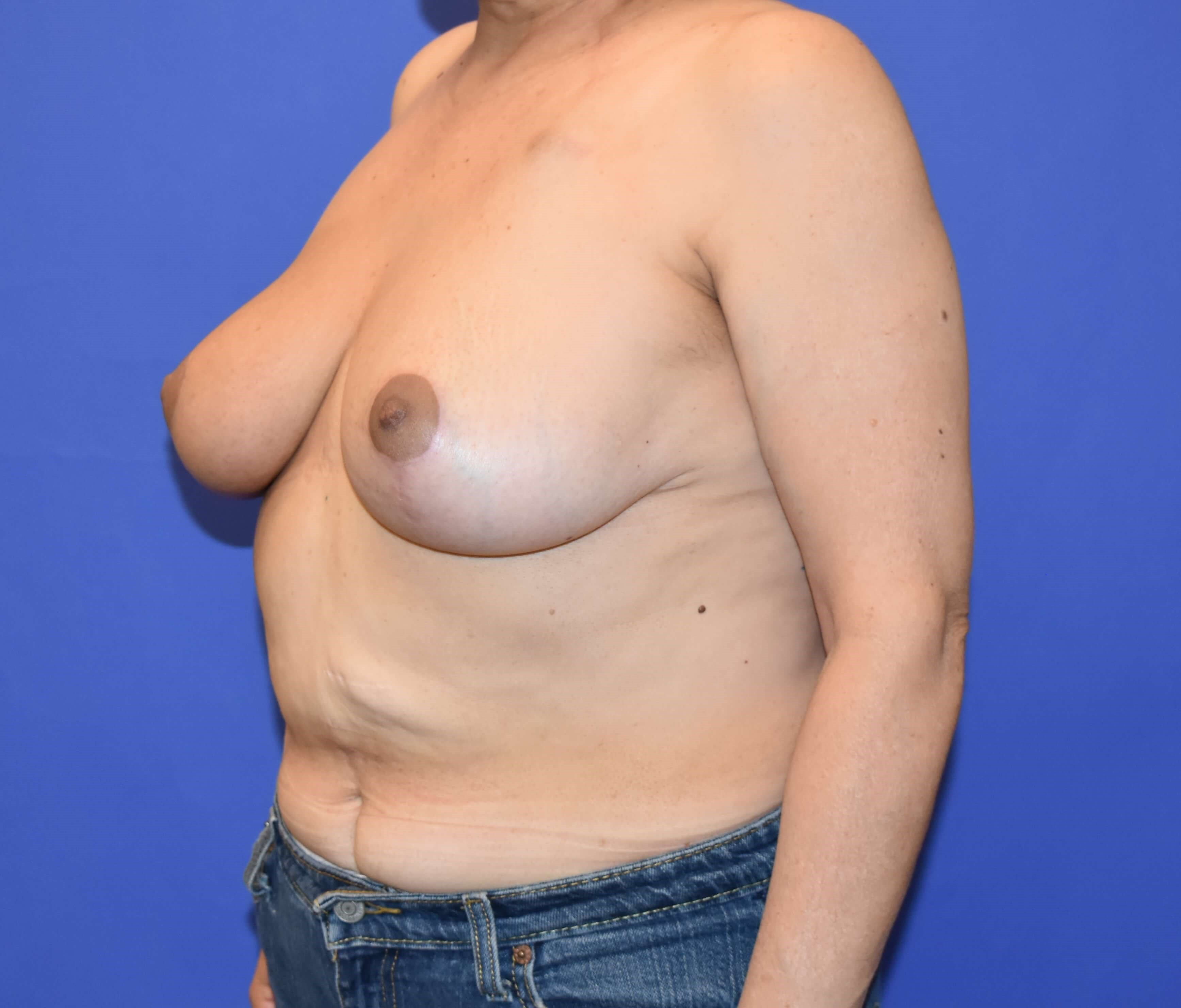 Breast Reconstruction Katy After 4 months
