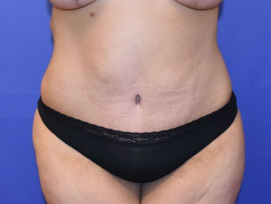 Tummy Tuck Houston After 3 months