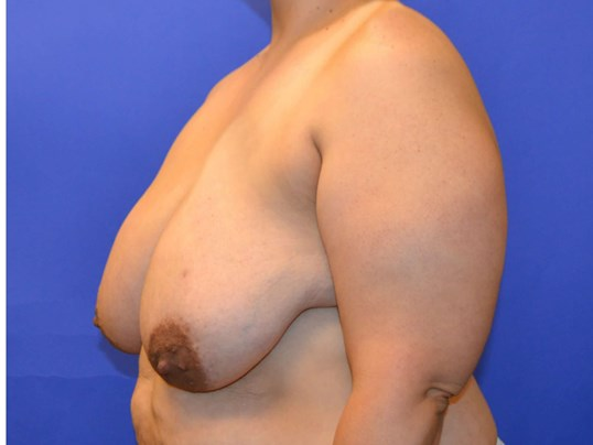 Breast Reduction Houston TX Before