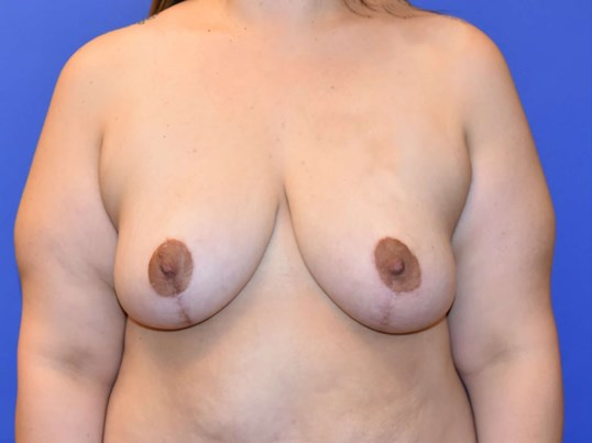 Breast Reduction Houston TX After