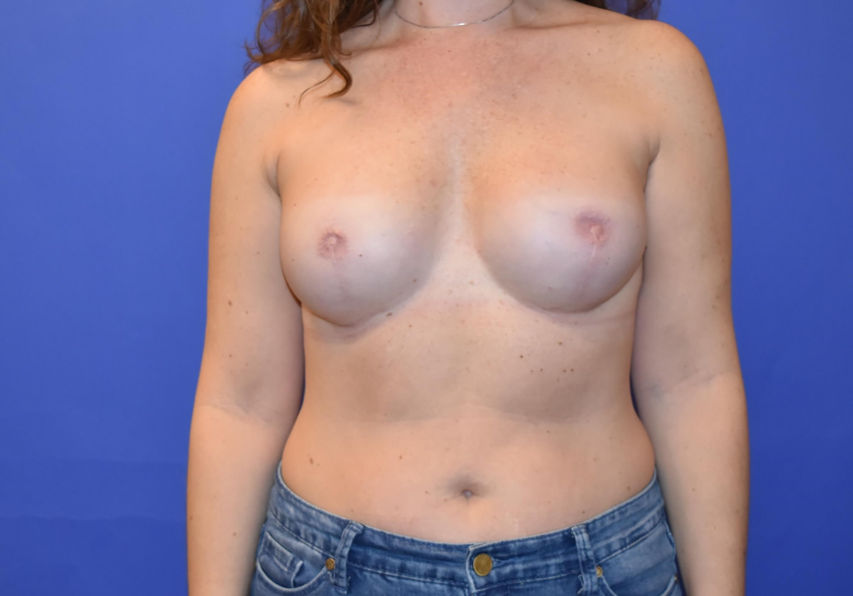 Breast Reconstruction Houston Final Stage