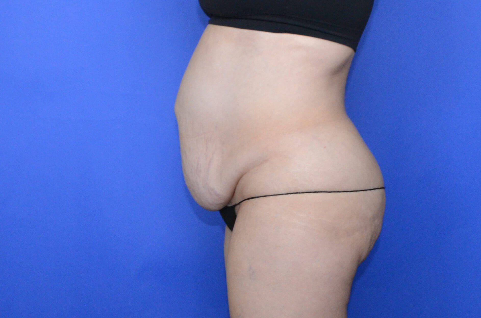 Tummy Tuck Katy, TX Before