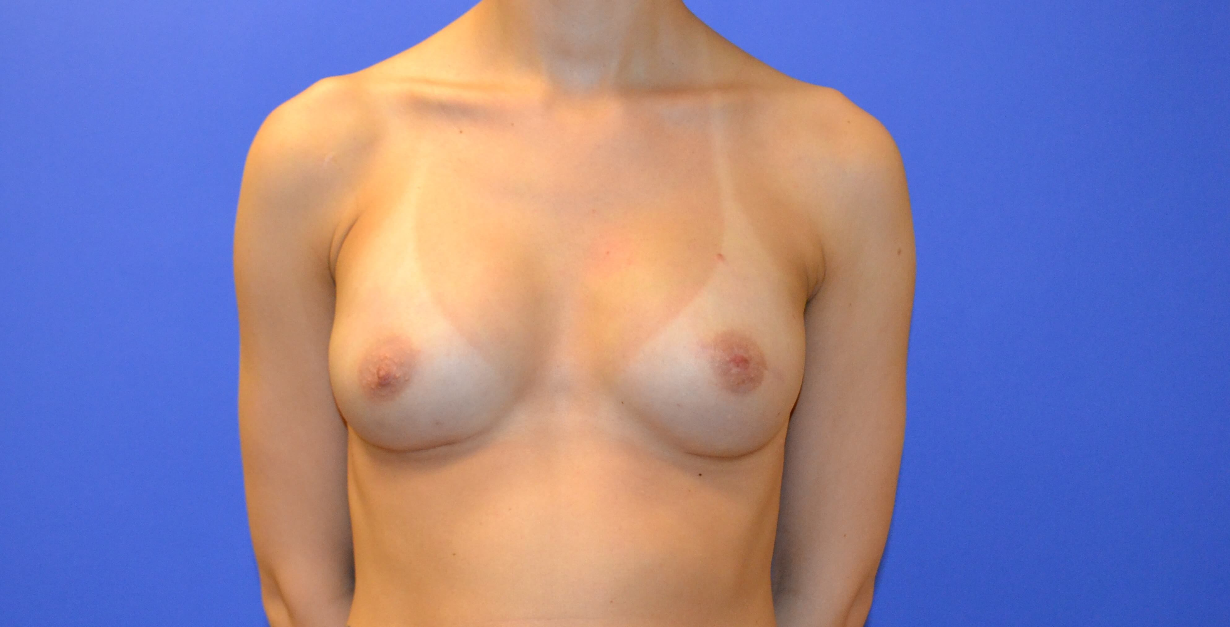 Breast & Nipple Reconstruction After