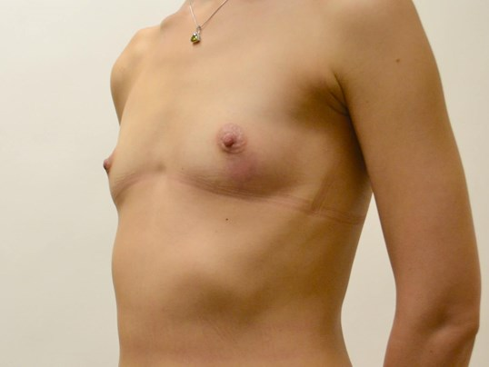Breast & Nipple Reconstruction Before