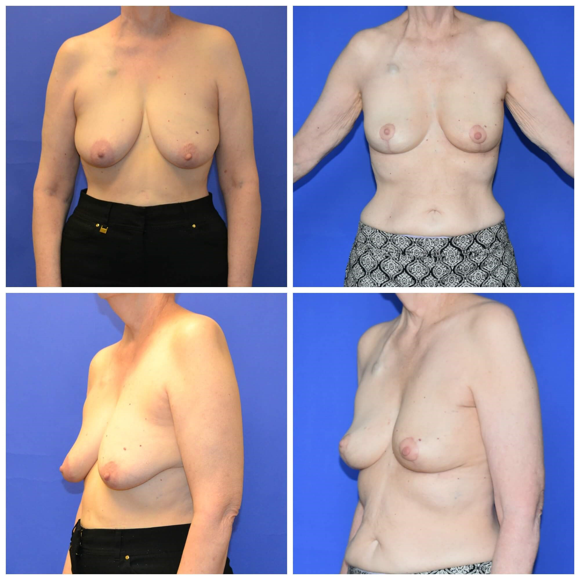 Breast Recons After