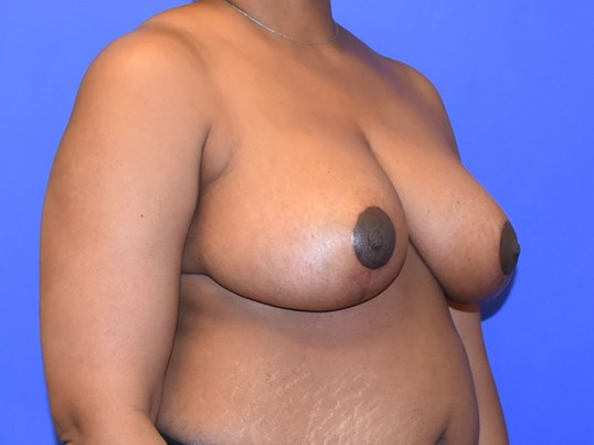 Houston Breast Reduction After 3 months