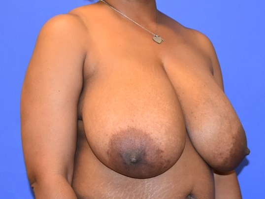 Houston Breast Reduction Before