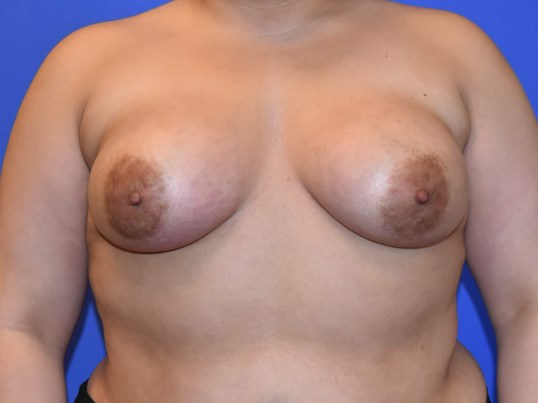 Breast After 2 months