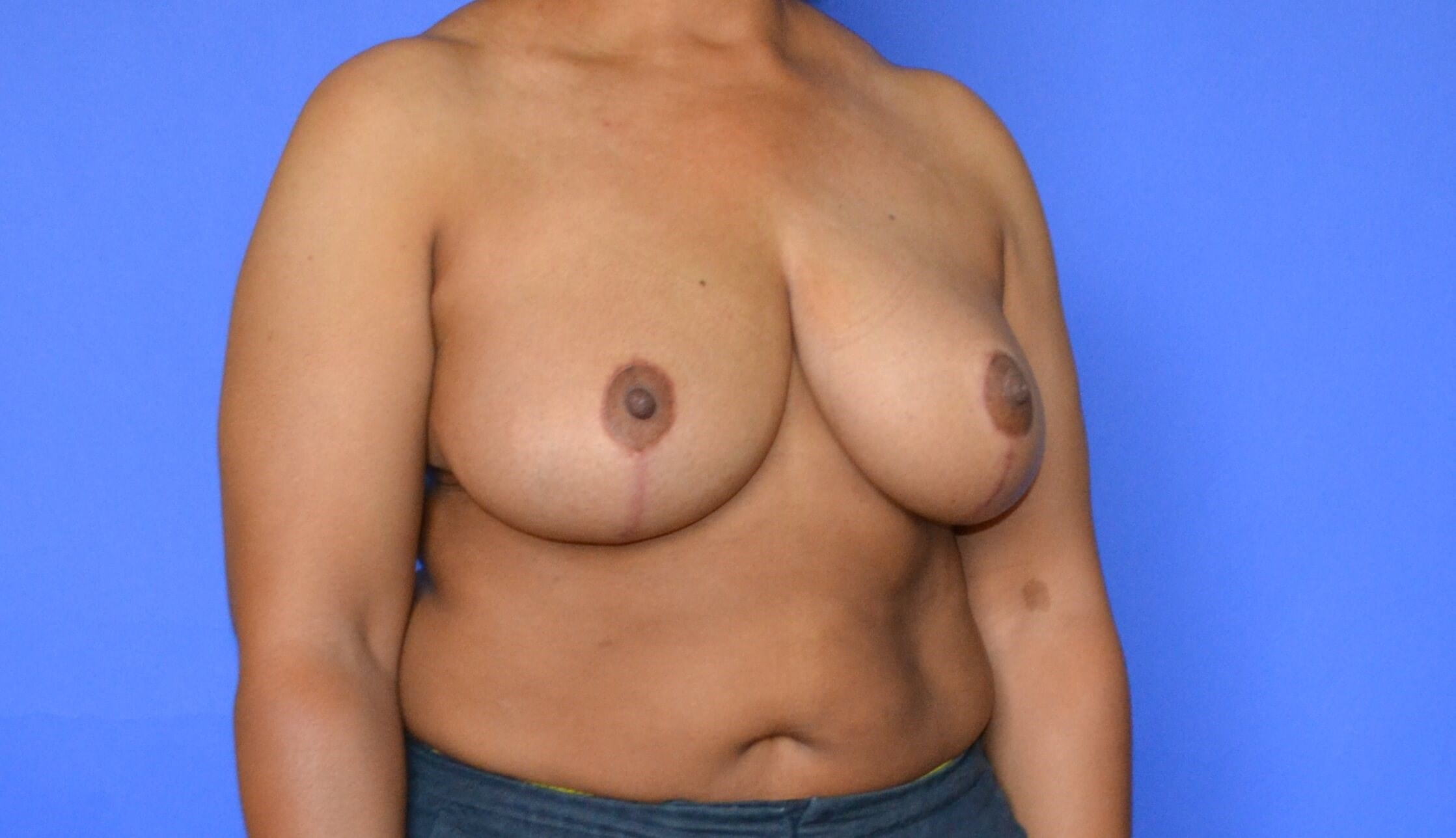 Breast Reduction Katy After