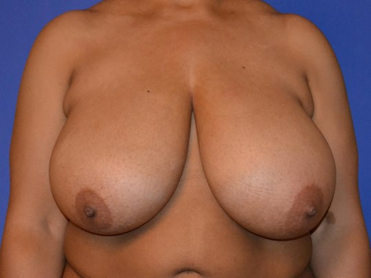 Breast Reduction Katy Before