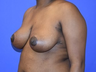 Breast Reduction Houston After