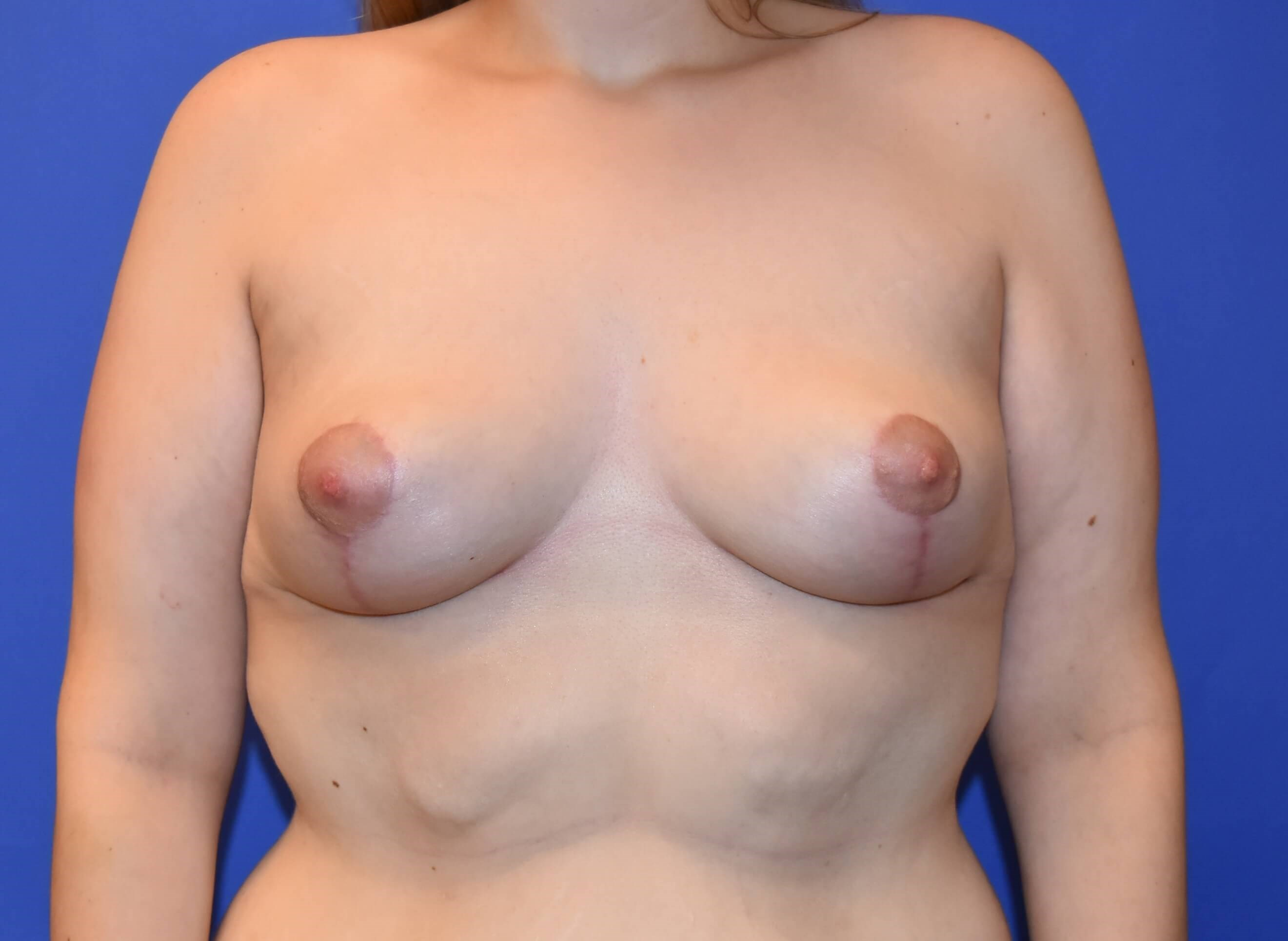 Breast Lift Houston After