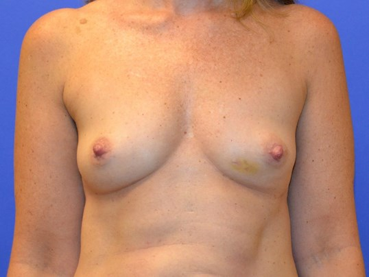 Breast Reconstruction Katy, TX Before