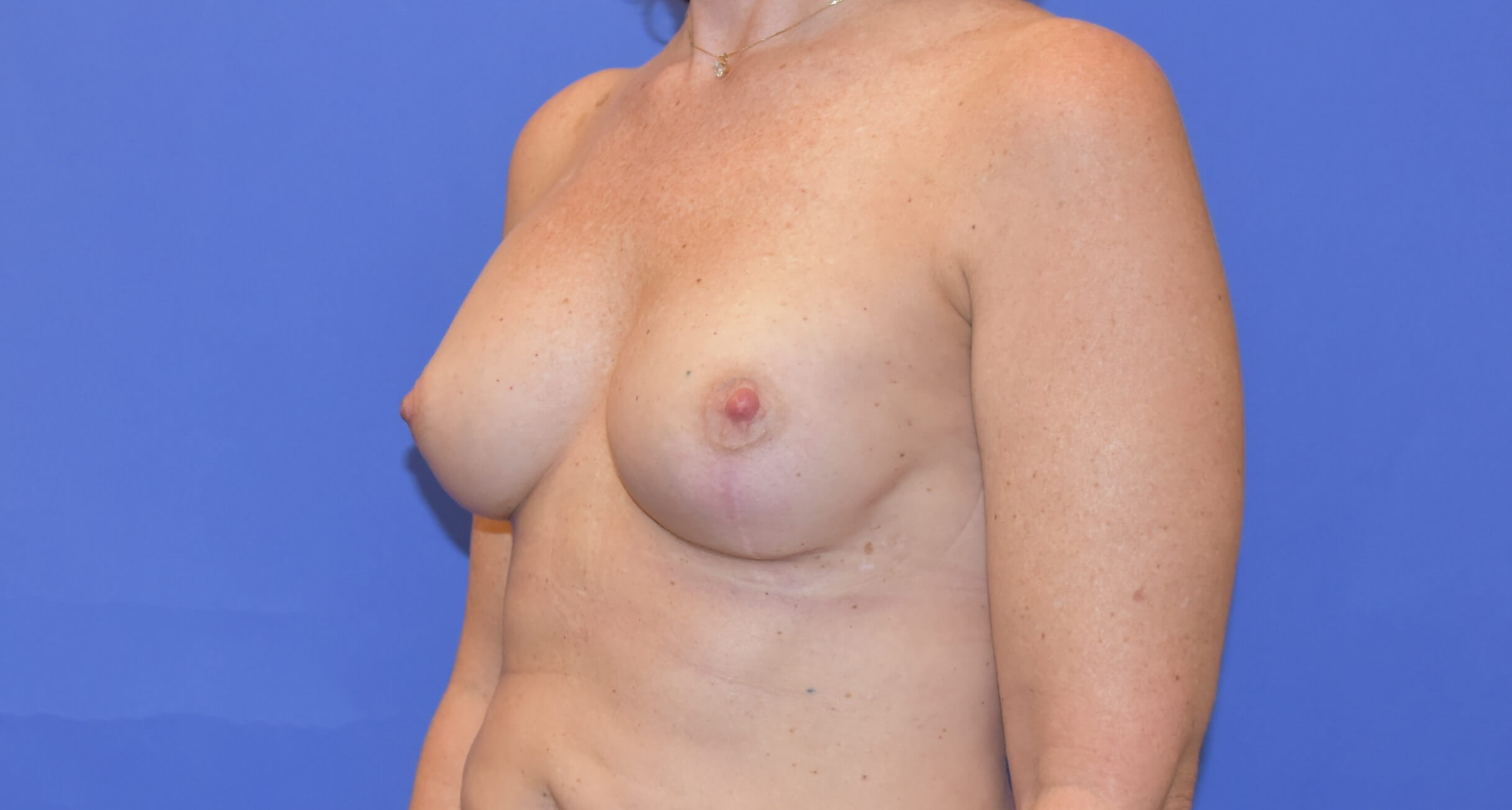 Breast Reconstruction Katy, TX After