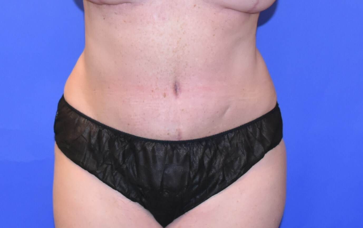 Breast Reconstruction DIEP After