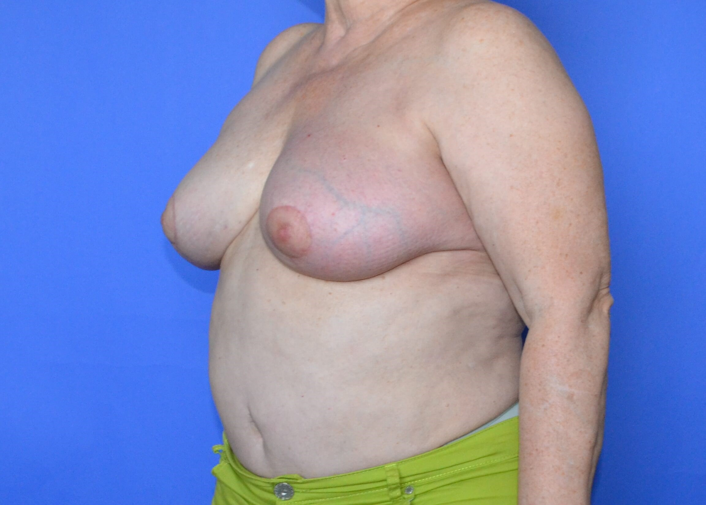 Breast Reconstruction Katy After