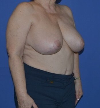 Breast Reconstruction Katy Before