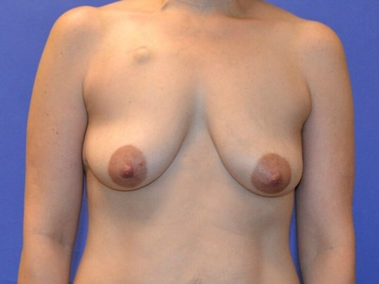 Breast Reconstruction Houston Before