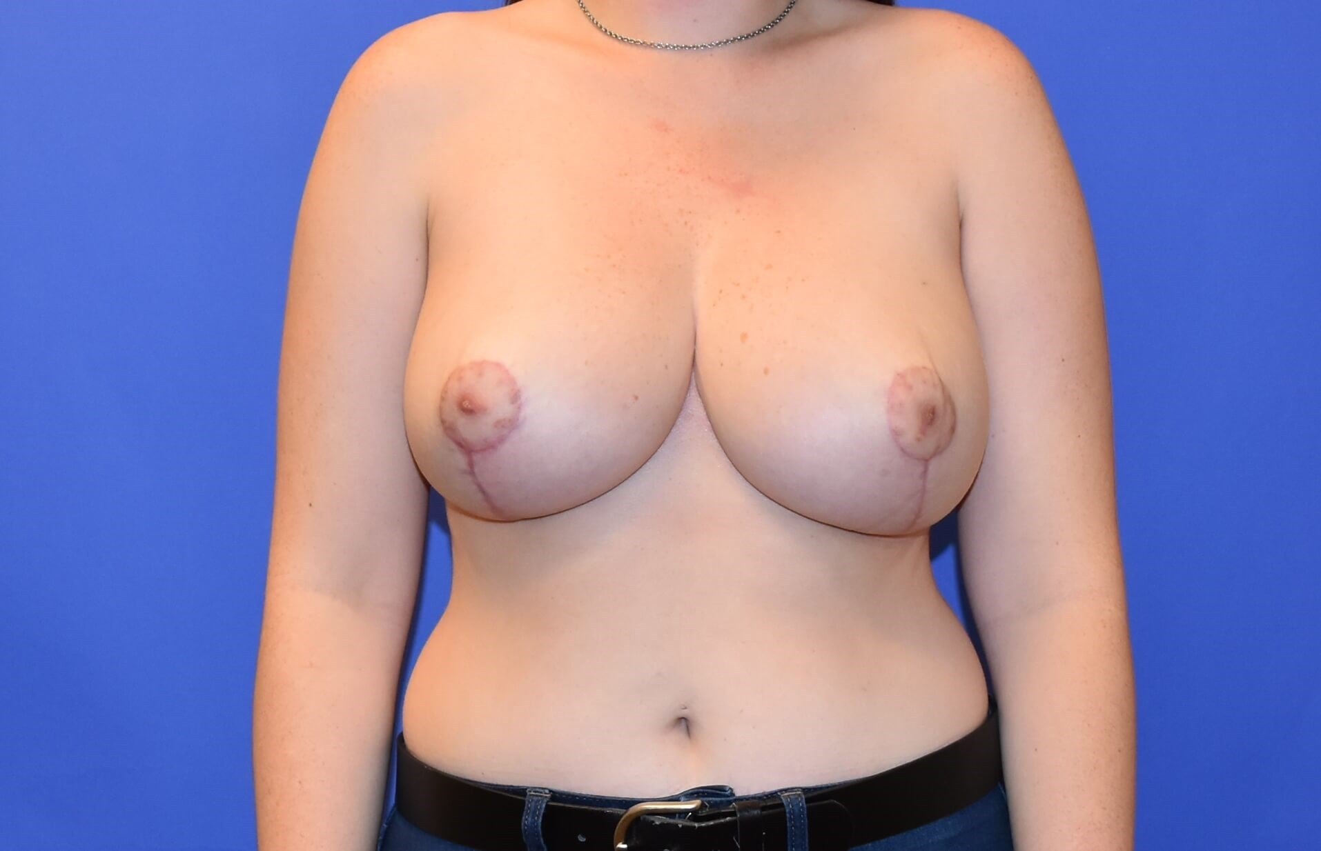 Breast Reduction Houston After 3 months