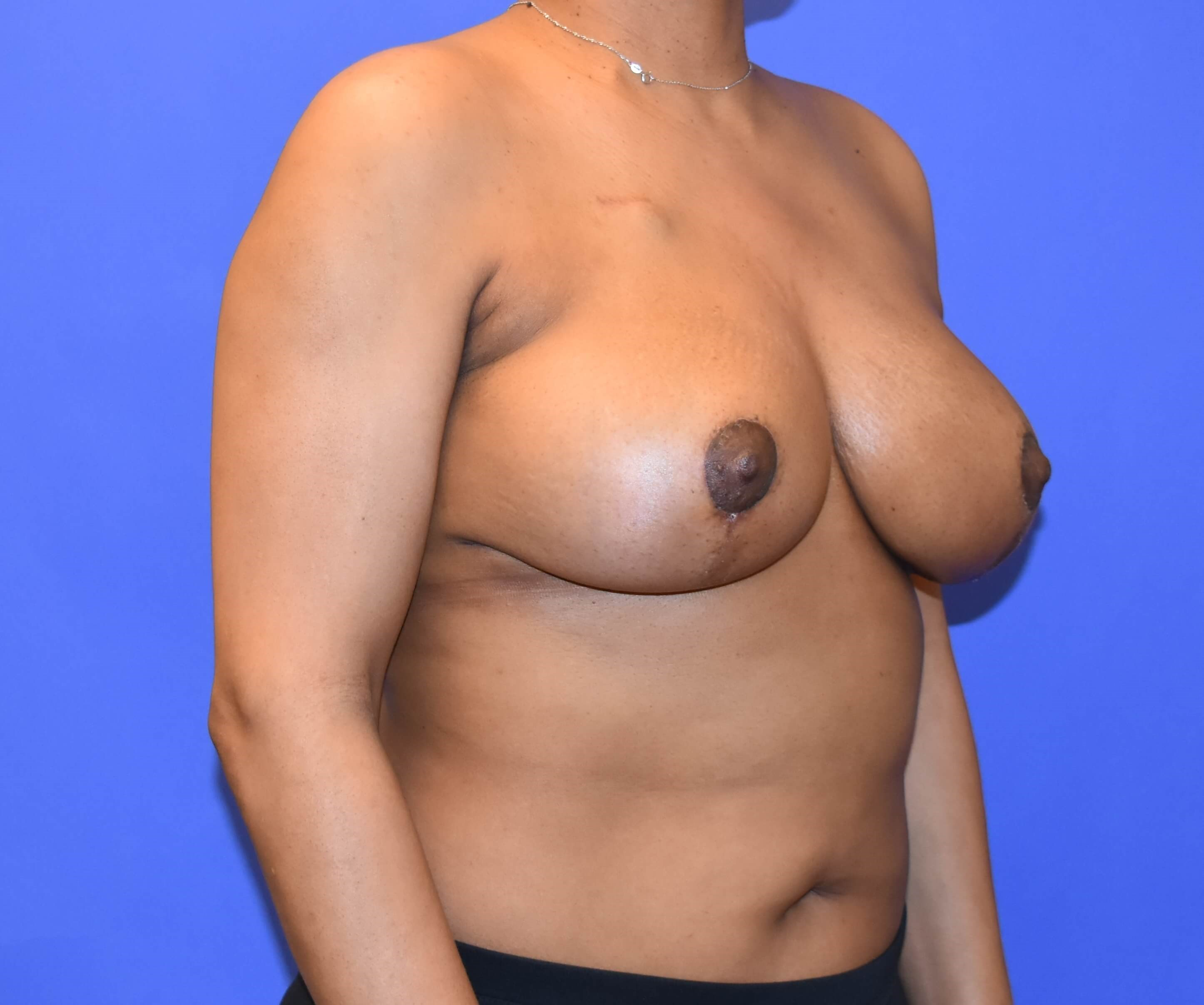 Breast Reconstruction Houston After