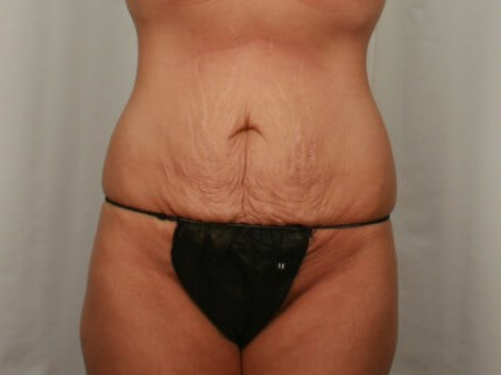Mommy Makeover - Tummy Tuck Before