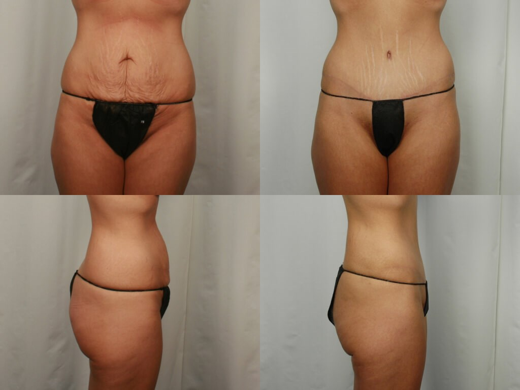 Mommy Makeover - Tummy Tuck After