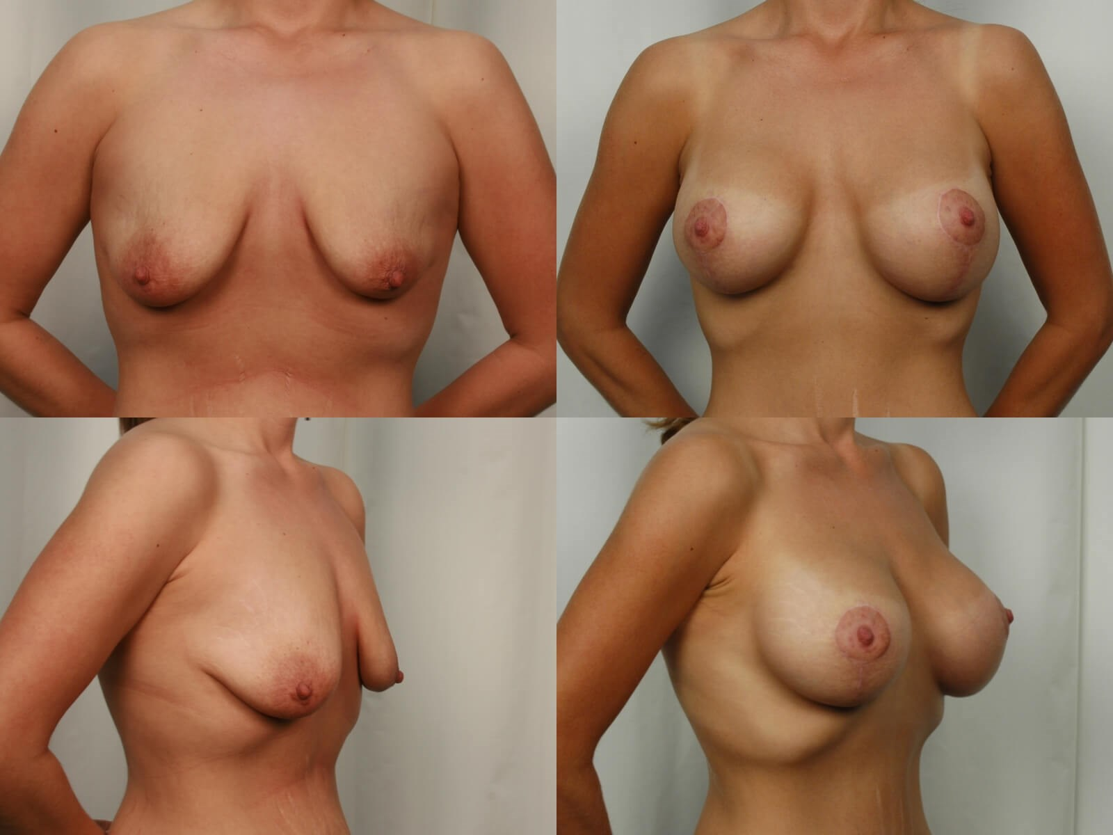 Mommy Makeover - Breast Lift After