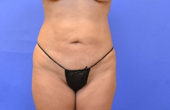Tummy Tuck - Katy, TX Before